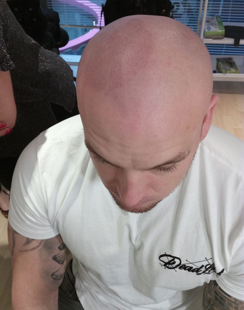 Building the right hand area of the scalp